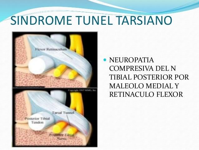 Sindrome tunel tarsiano y luxacion de peroneos