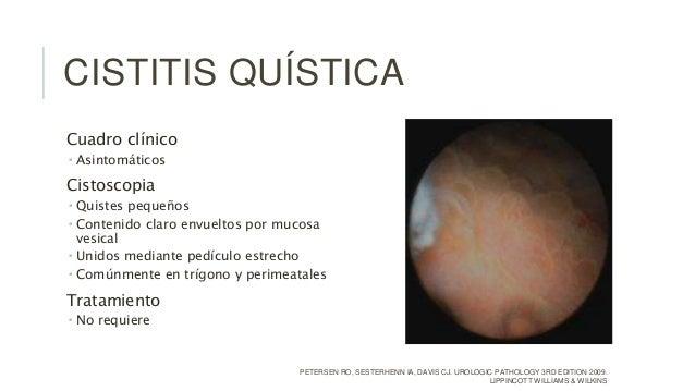 Sindrome uretral y otras Cistitis