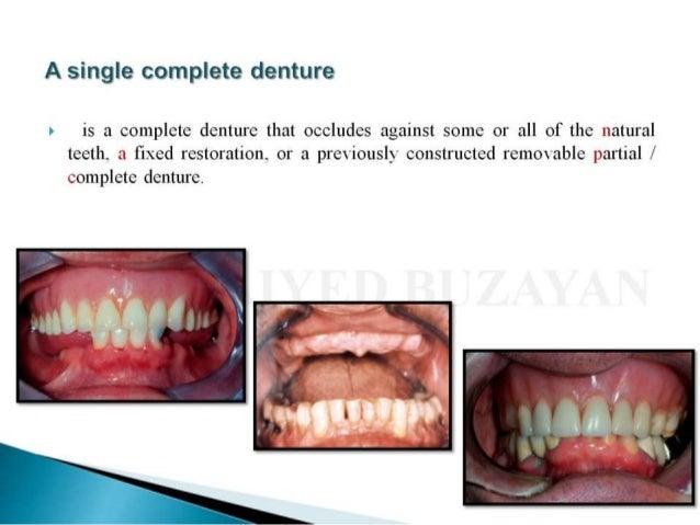 Single denture Slide 2