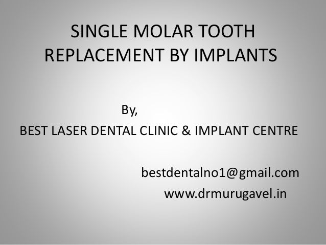 SINGLE MOLAR TOOTH REPLACEMENT BY IMPLANTS By, BEST LASER DENTAL CLINIC & IMPLANT CENTRE bestdentalno1@gmail.com www.drmur...