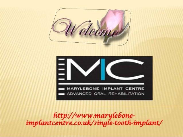 http://www.marylebone- implantcentre.co.uk/single-tooth-implant/