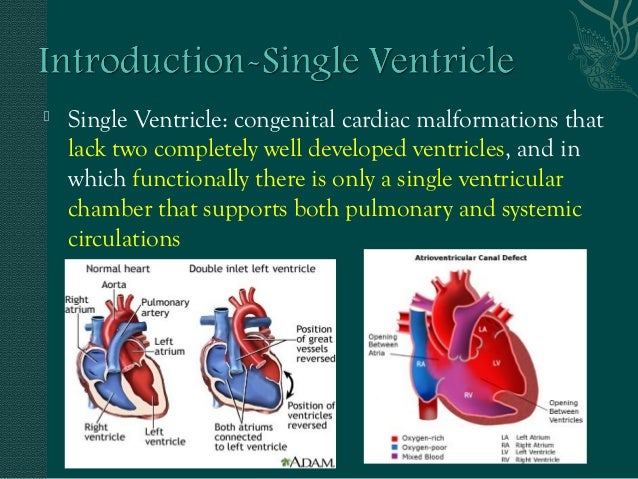 Single Ventricle Dr Prashant Medanta