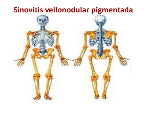 Sinovitis vellonodular pigmentada                   .          Dra. Zoila De Jesus.