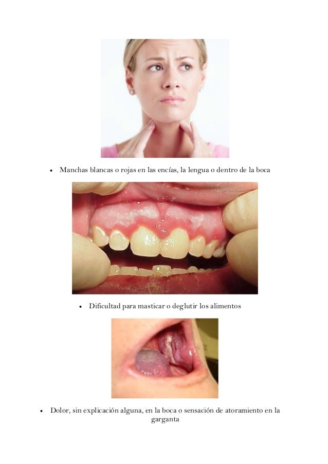 Sintomas del Cáncer Bucal  Slide 2
