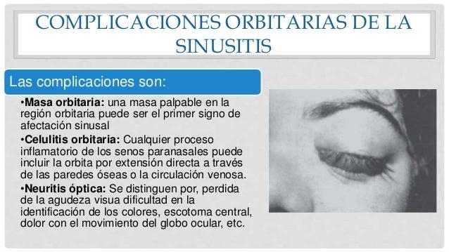Sinusitis rinitis mucormucosis laberintitis reas de for Paredes orbitarias