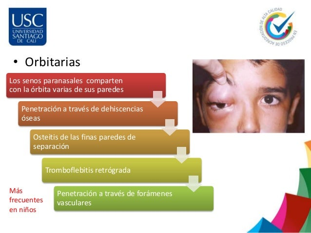 Sinusitis for Paredes orbitarias