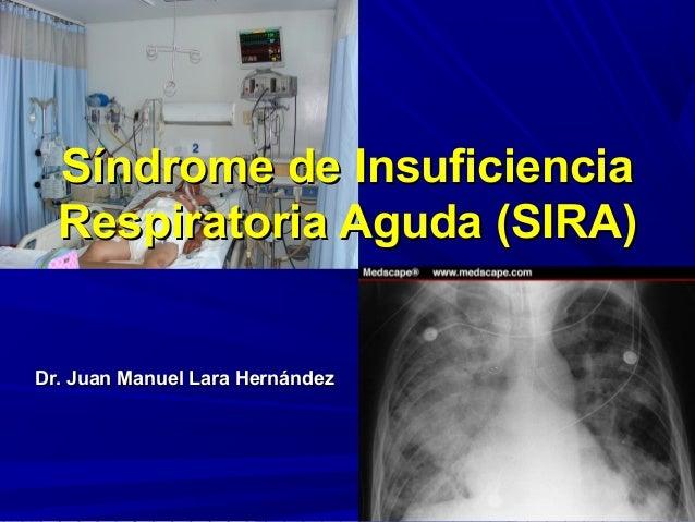 Síndrome de InsuficienciaSíndrome de InsuficienciaRespiratoria Aguda (SIRA)Respiratoria Aguda (SIRA)Dr. Juan Manuel Lara H...