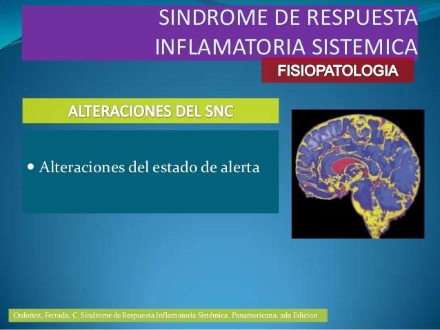  Alteraciones del estado de alertaSINDROME DE RESPUESTAINFLAMATORIA SISTEMICAOrdoñez, Ferrada, C. Síndrome de Respuesta I...