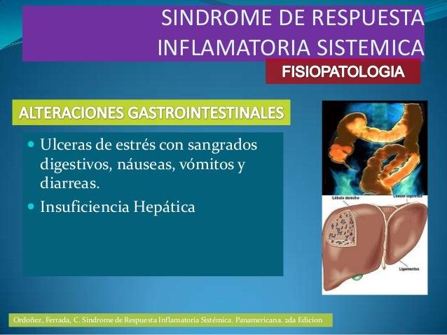  Ulceras de estrés con sangradosdigestivos, náuseas, vómitos ydiarreas. Insuficiencia HepáticaSINDROME DE RESPUESTAINFLA...