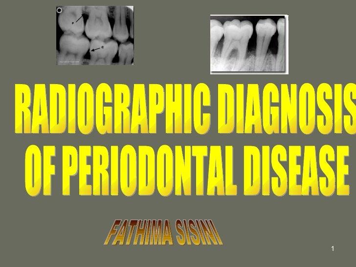RADIOGRAPHIC DIAGNOSIS  OF PERIODONTAL DISEASE FATHIMA SISINI