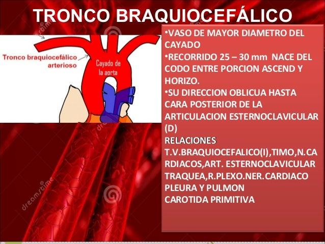 anatomía del cayado aortico y sus ramas