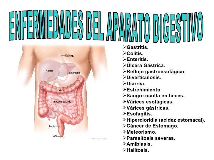 ENFERMEDADES DEL APARATO DIGESTIVO <ul><li>Gastritis. </li></ul><ul><li>Colitis. </li></ul><ul><li>Enteritis. </li></ul><u...