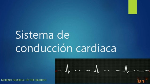 Sistema de conducción cardiaca MORENO FIGUEROA HÉCTOR EDUARDO