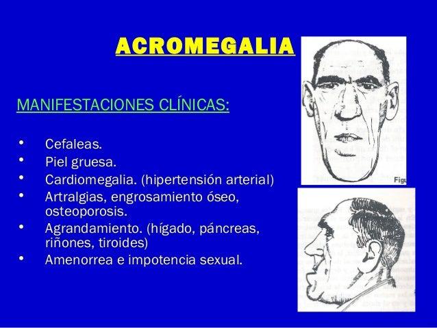 ACROMEGALIAMANIFESTACIONES CLÍNICAS:• Cefaleas.• Piel gruesa.• Cardiomegalia. (hipertensión arterial)• Artralgias, engrosa...