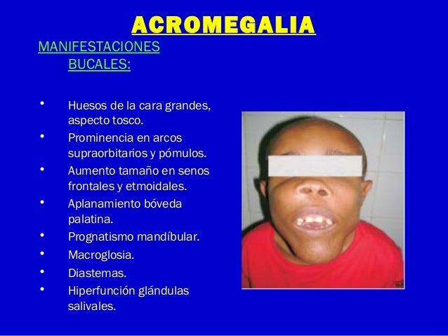 ACROMEGALIAMANIFESTACIONESBUCALES:• Huesos de la cara grandes,aspecto tosco.• Prominencia en arcossupraorbitarios y pómulo...