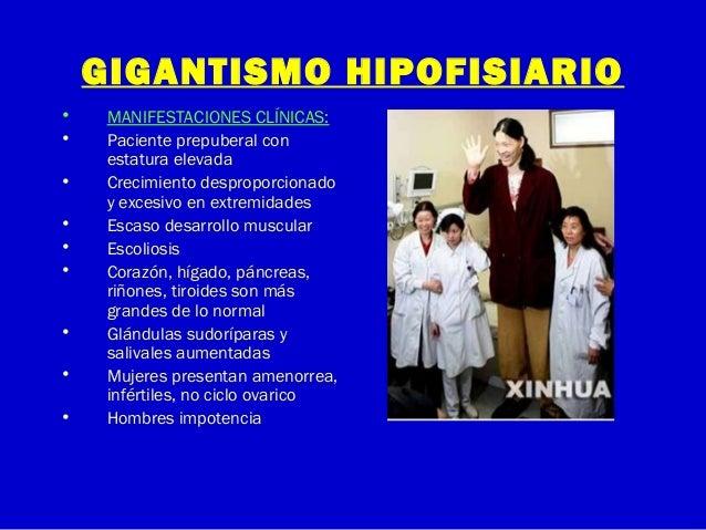GIGANTISMO HIPOFISIARIO• MANIFESTACIONES CLÍNICAS:• Paciente prepuberal conestatura elevada• Crecimiento desproporcionadoy...