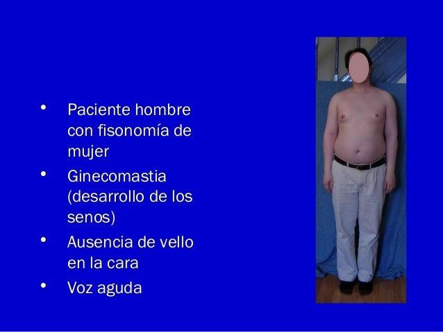 • Paciente hombrecon fisonomía demujer• Ginecomastia(desarrollo de lossenos)• Ausencia de velloen la cara• Voz aguda
