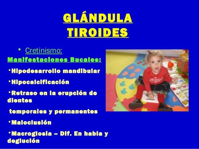 GLÁNDULATIROIDES• Cretinismo:Manifestaciones Bucales:•Hipodesarrollo mandibular•Hipocalcificación•Retraso en la erupción d...