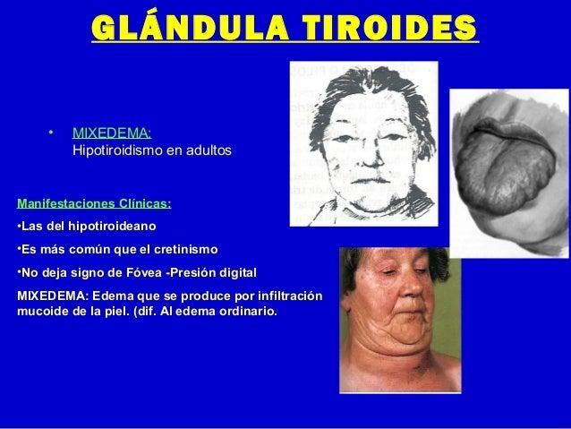 GLÁNDULA TIROIDES• MIXEDEMA:Hipotiroidismo en adultosManifestaciones Clínicas:•Las del hipotiroideano•Es más común que el ...