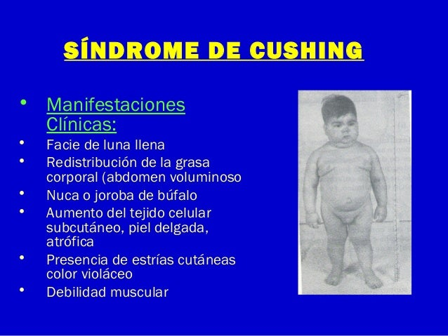 SÍNDROME DE CUSHING• ManifestacionesClínicas:• Facie de luna llena• Redistribución de la grasacorporal (abdomen voluminoso...