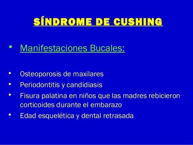 SÍNDROME DE CUSHING• Manifestaciones Bucales:• Osteoporosis de maxilares• Periodontitis y candidiasis• Fisura palatina en ...