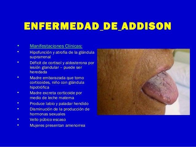 ENFERMEDAD DE ADDISON• Manifestaciones Clínicas:• Hipofunción y atrofia de la glándulasuprarrenal• Déficit de cortisol y a...