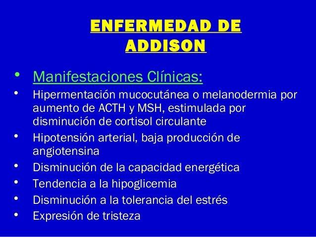 ENFERMEDAD DEADDISON• Manifestaciones Clínicas:• Hipermentación mucocutánea o melanodermia poraumento de ACTH y MSH, estim...
