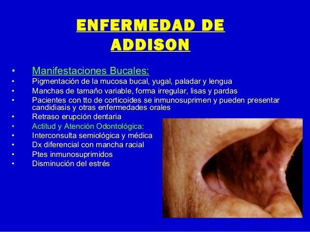 ENFERMEDAD DEADDISON• Manifestaciones Bucales:• Pigmentación de la mucosa bucal, yugal, paladar y lengua• Manchas de tamañ...