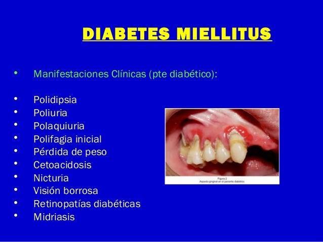 DIABETES MIELLITUS• Manifestaciones Clínicas (pte diabético):• Polidipsia• Poliuria• Polaquiuria• Polifagia inicial• Pérdi...