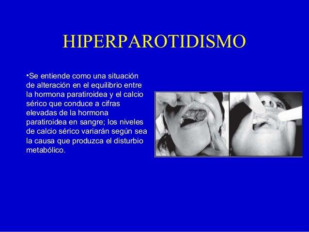 HIPERPAROTIDISMO•Se entiende como una situaciónde alteración en el equilibrio entrela hormona paratiroidea y el calcioséri...
