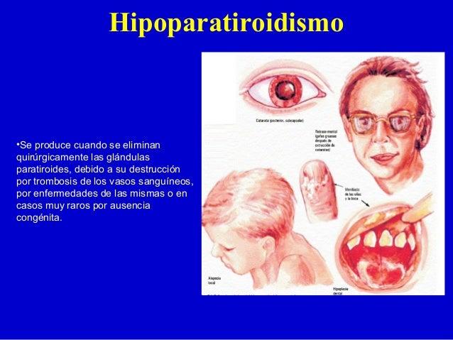 Hipoparatiroidismo•Se produce cuando se eliminanquirúrgicamente las glándulasparatiroides, debido a su destrucciónpor trom...