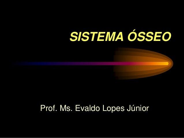 SISTEMA ÓSSEOProf. Ms. Evaldo Lopes Júnior