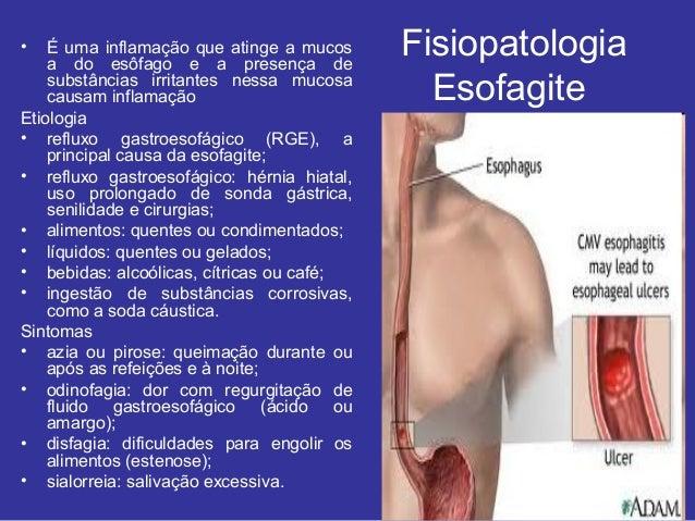 Sistema gastrointestinal Slide 3