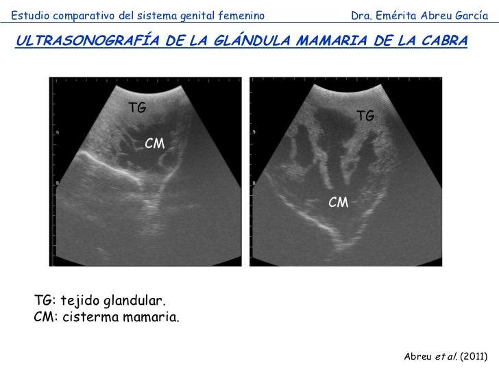 Estudio comparativo del sistema genital femenino        Dra. Emérita Abreu GarcíaULTRASONOGRAFÍA DE LA GLÁNDULA MAMARIA DE...