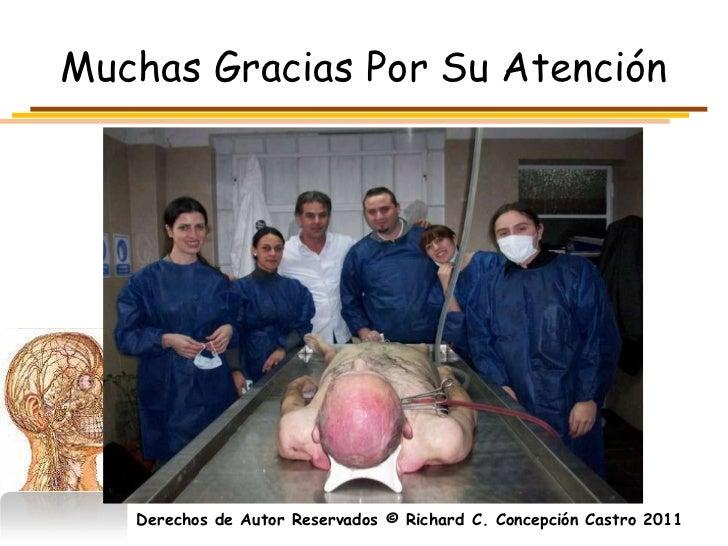 Muchas Gracias Por Su Atención   Derechos de Autor Reservados © Richard C. Concepción Castro 2011