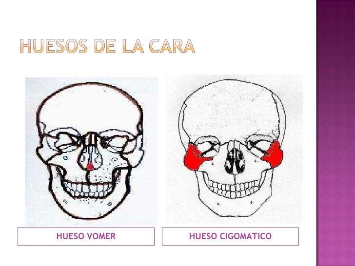 <ul><li>HUESO VOMER </li></ul><ul><li>HUESO CIGOMATICO </li></ul>