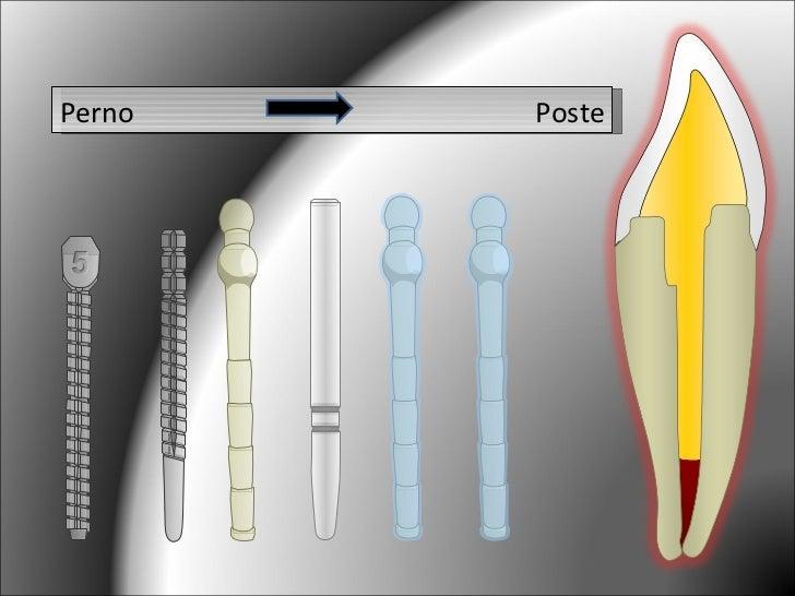Sistema poste mu n for Estanques artificiales o prefabricados