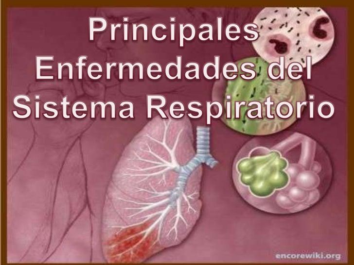Principales <br />Enfermedades del <br />Sistema Respiratorio<br />