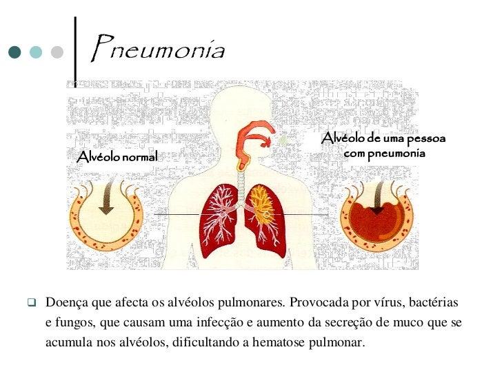 Tuberculose   Infecção causada por bactérias que destroem os    alvéolos pulmonares.