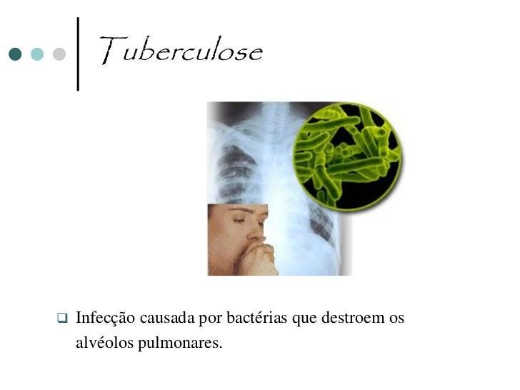 Cancro do Pulmão                               Cancro                                                                Pulmã...
