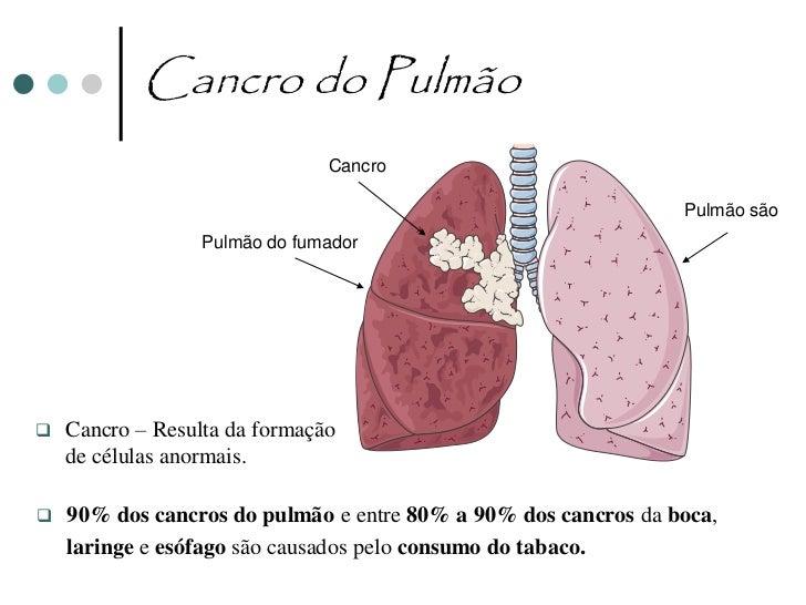 Atitudes Preventivas da Saúde do                  Sistema Respiratório•   Praticar exercício físico ao ar livre•   Não fum...