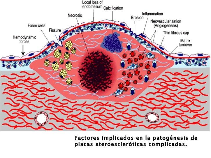 La tromboflebitis de las venas de las extremidades la fisioterapia
