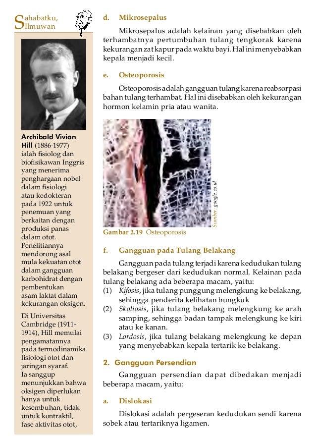 Bab 2 - Sistem Gerak pada Manusia 31Gambar 2.19 OsteoporosisSumber:google.co.idf. Gangguan pada Tulang BelakangGangguan pa...