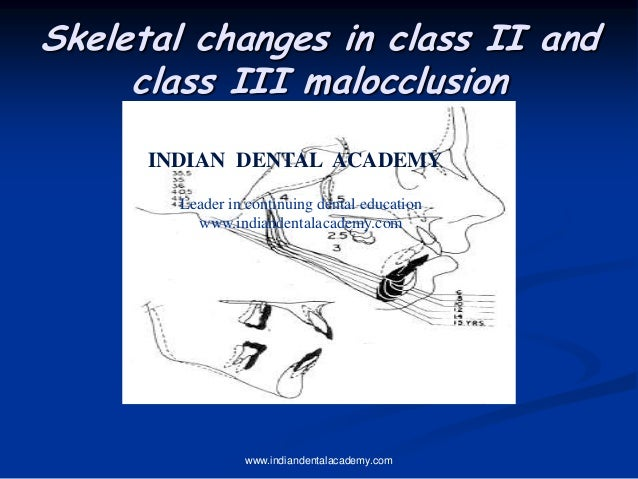 Skeletal changes in class II and class III malocclusion www.indiandentalacademy.com INDIAN DENTAL ACADEMY Leader in contin...