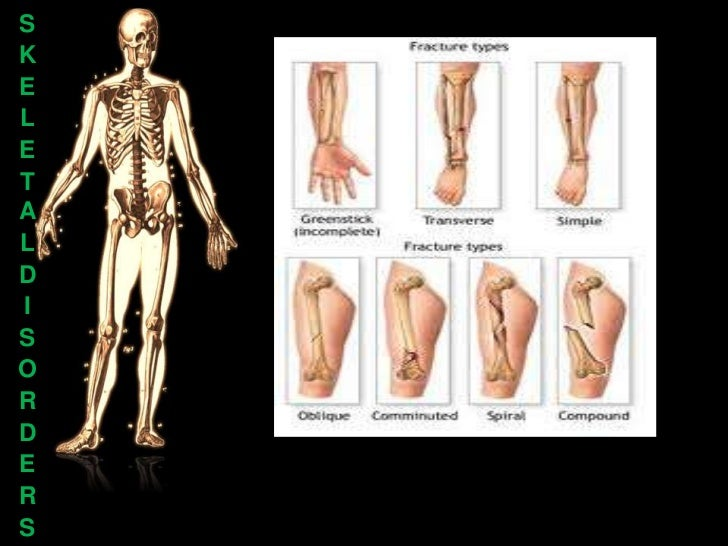 skeletal disease The school of dentistry's vision is to use interdisciplinary expertise to understand  fundamental mechanisms of oral/musculoskeletal disease, to identify disease.