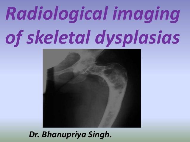 Radiological imaging of skeletal dysplasias Dr. Bhanupriya Singh.