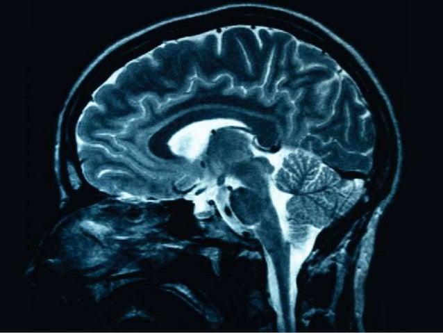 SkeptiCafe Neirozinātne. Atmiņu ārēja izveide un ārēja izdzēšana - vai un kā tas ir iespējams? Gunda Zvīgule 2013.gada nov...