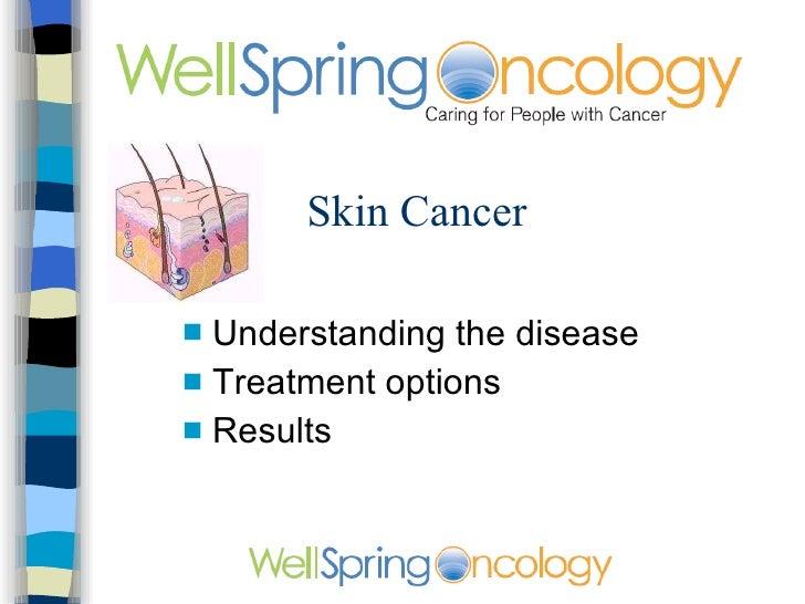 Skin Cancer <ul><li>Understanding the disease </li></ul><ul><li>Treatment options </li></ul><ul><li>Results </li></ul>