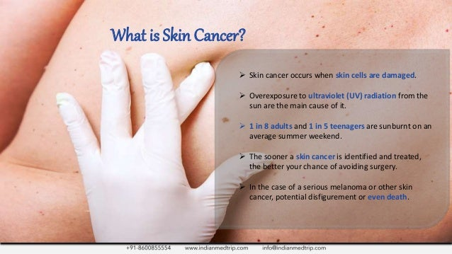 A Look At Skin Cancer Treatment Its Prevention
