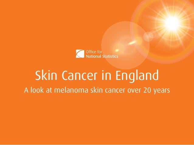 Skin Cancer in England A look at melanoma skin cancer over 20 years